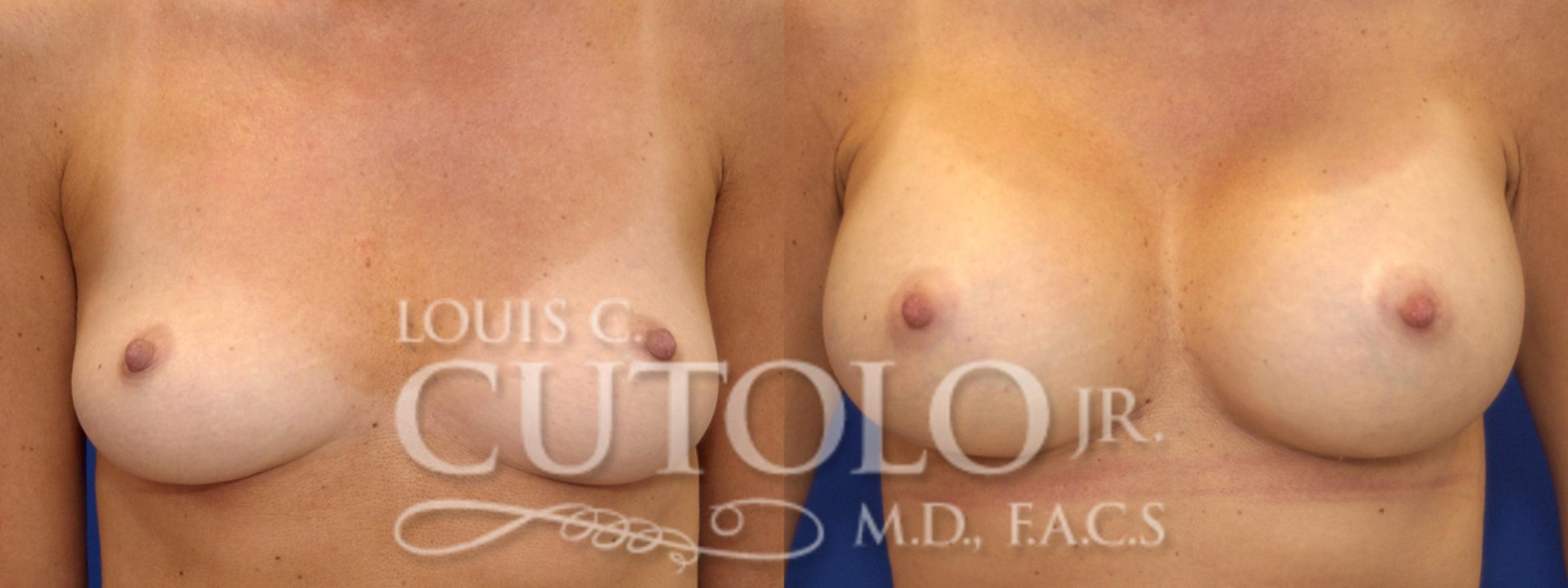 Breast Augmentation Before & After Photo | Brooklyn, Staten Island, Queens, NY | Louis C. Cotolo, Jr., M.D., F.A.C.S.