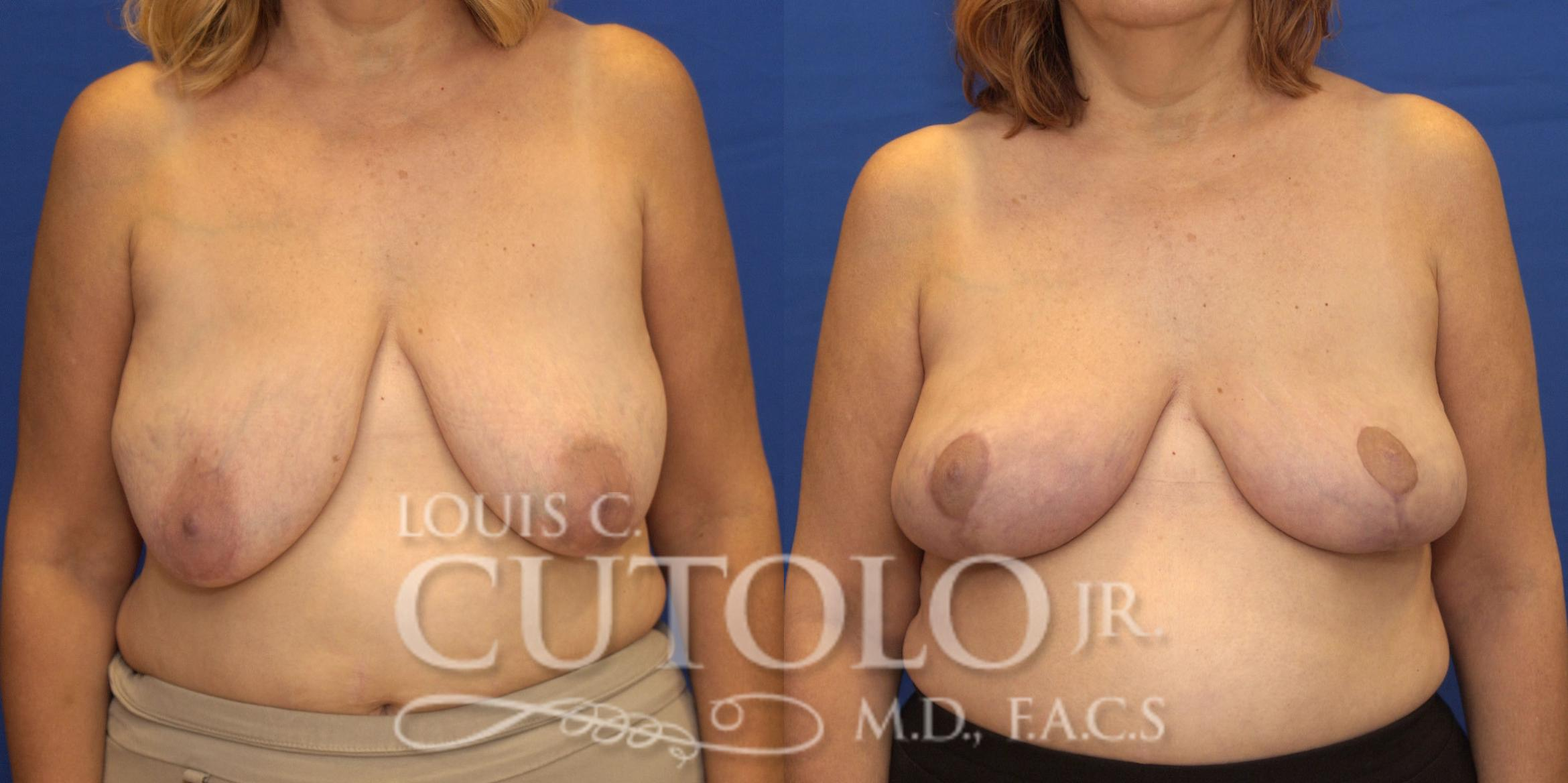 Breast Lift Before & After Photo | Brooklyn, Staten Island, Queens, NY | Louis C. Cotolo, Jr., M.D., F.A.C.S.