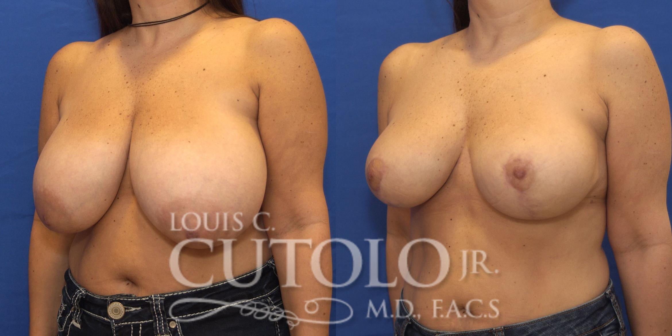 Breast Reduction Before & After Photo | Brooklyn, Staten Island, Queens, NY | Louis C. Cotolo, Jr., M.D., F.A.C.S.