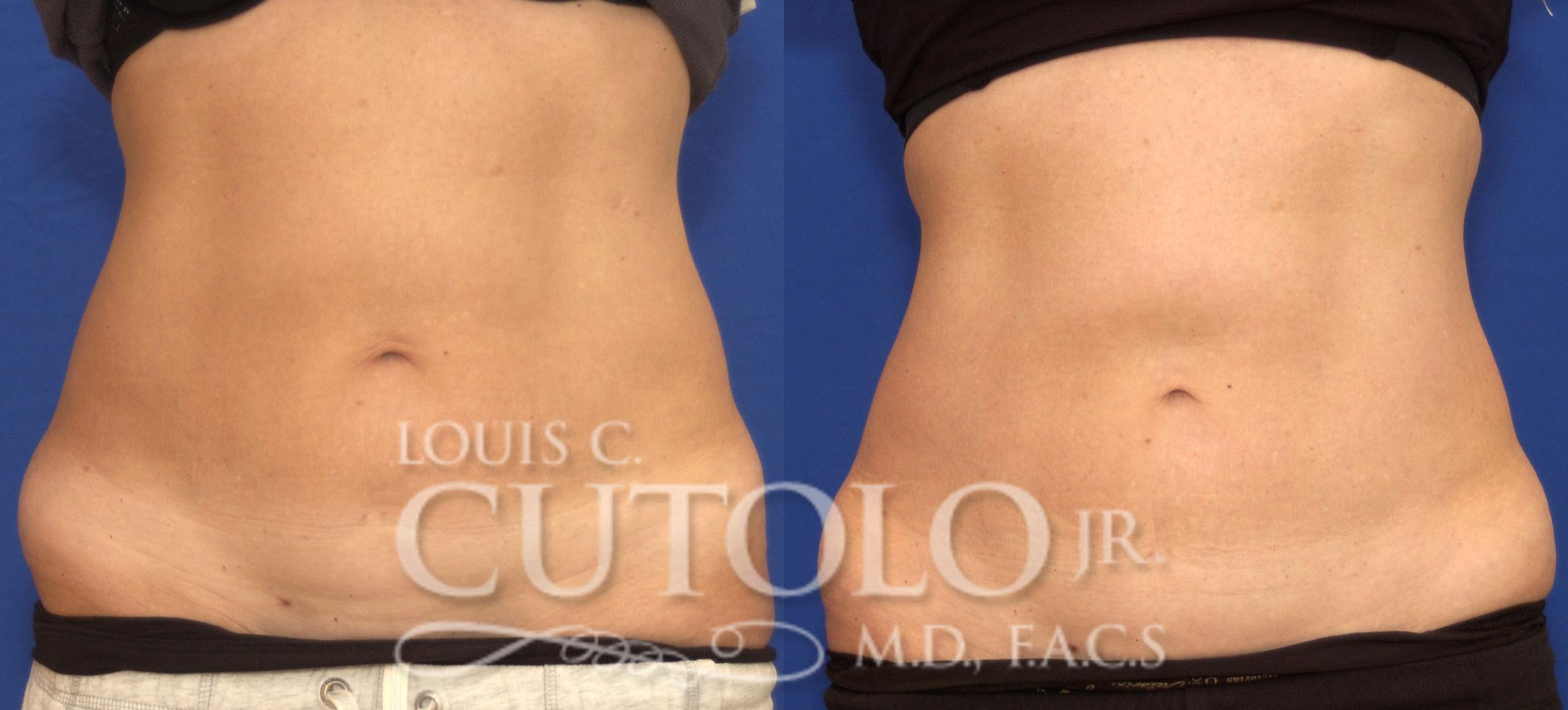 CoolSculpting® Before & After Photo | Brooklyn, Staten Island, Queens, NY | Louis C. Cotolo, Jr., M.D., F.A.C.S.