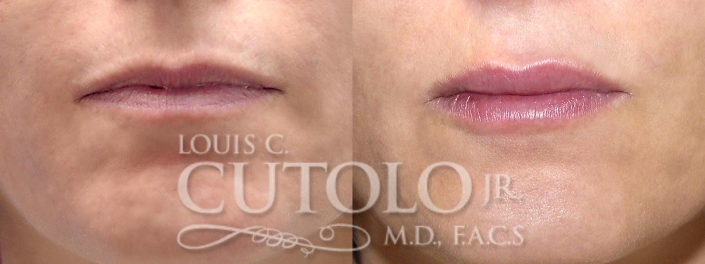 Dermal Fillers Before & After Photo | Staten Island, NY | Louis C. Cotolo, Jr., M.D., F.A.C.S.