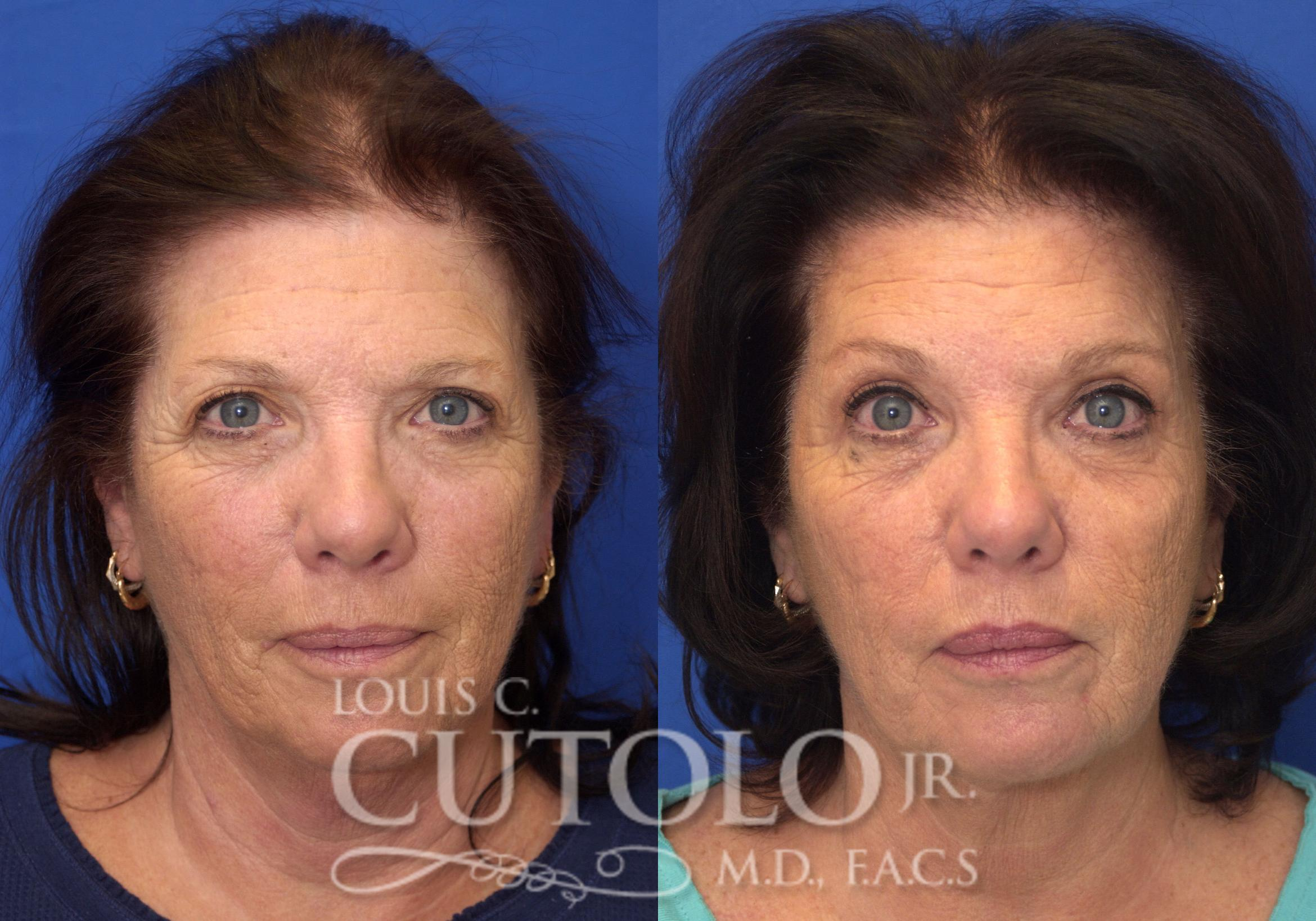 Eyelid Surgery Before & After Photo | Brooklyn, Staten Island, Queens, NY | Louis C. Cotolo, Jr., M.D., F.A.C.S.