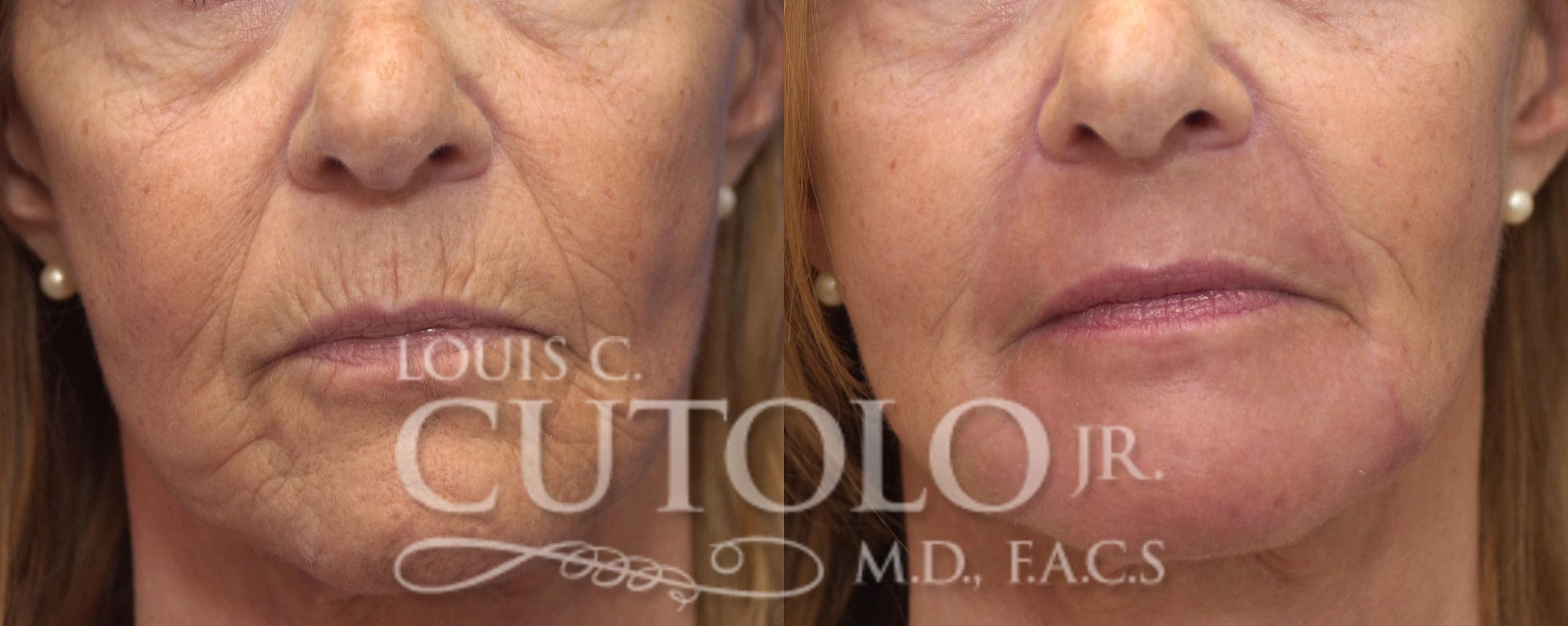 Laser Skin Resurfacing Before & After Photo | Staten Island, NY | Louis C. Cotolo, Jr., M.D., F.A.C.S.