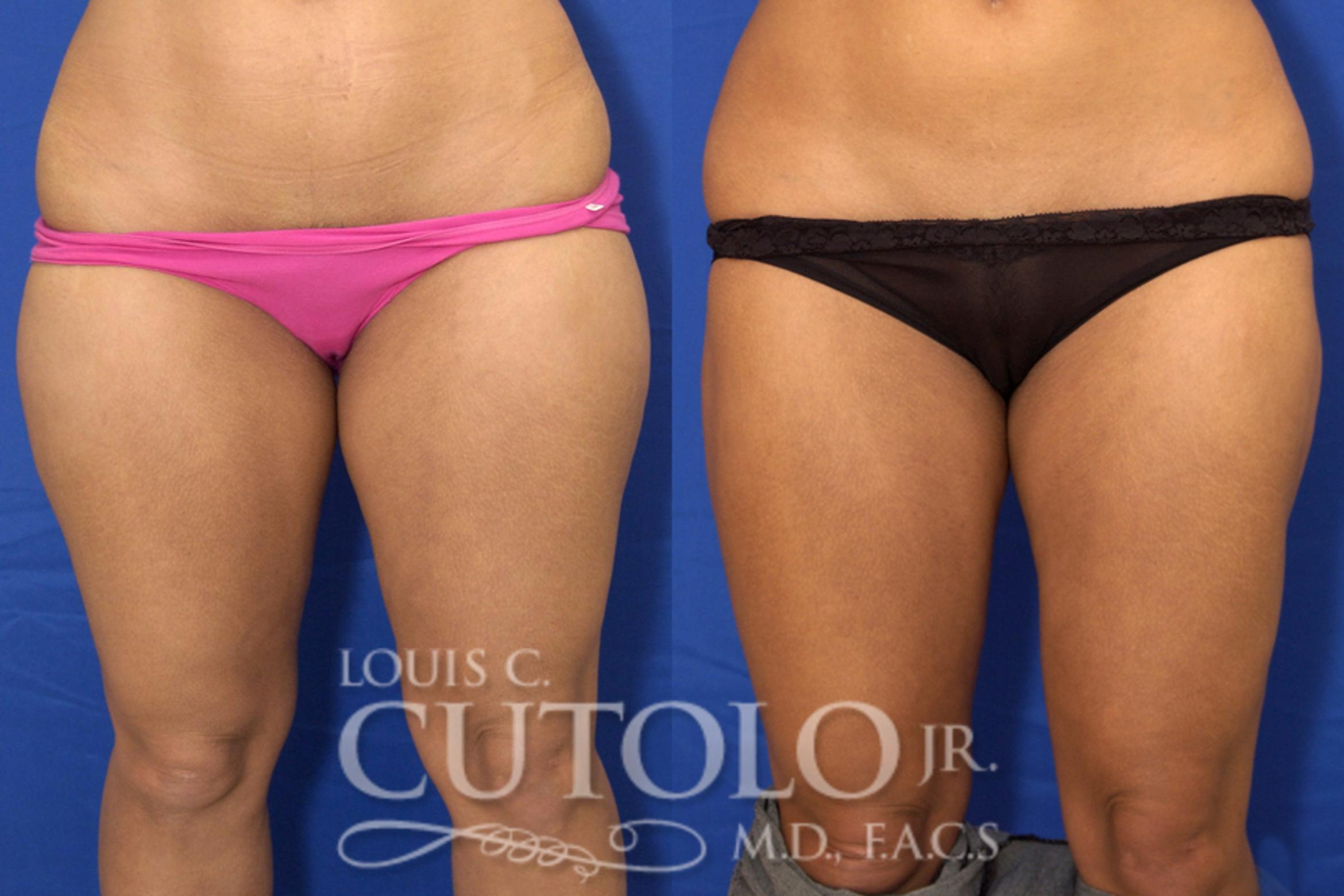 Liposuction Before & After Photo | Staten Island, NY | Louis C. Cotolo, Jr., M.D., F.A.C.S.