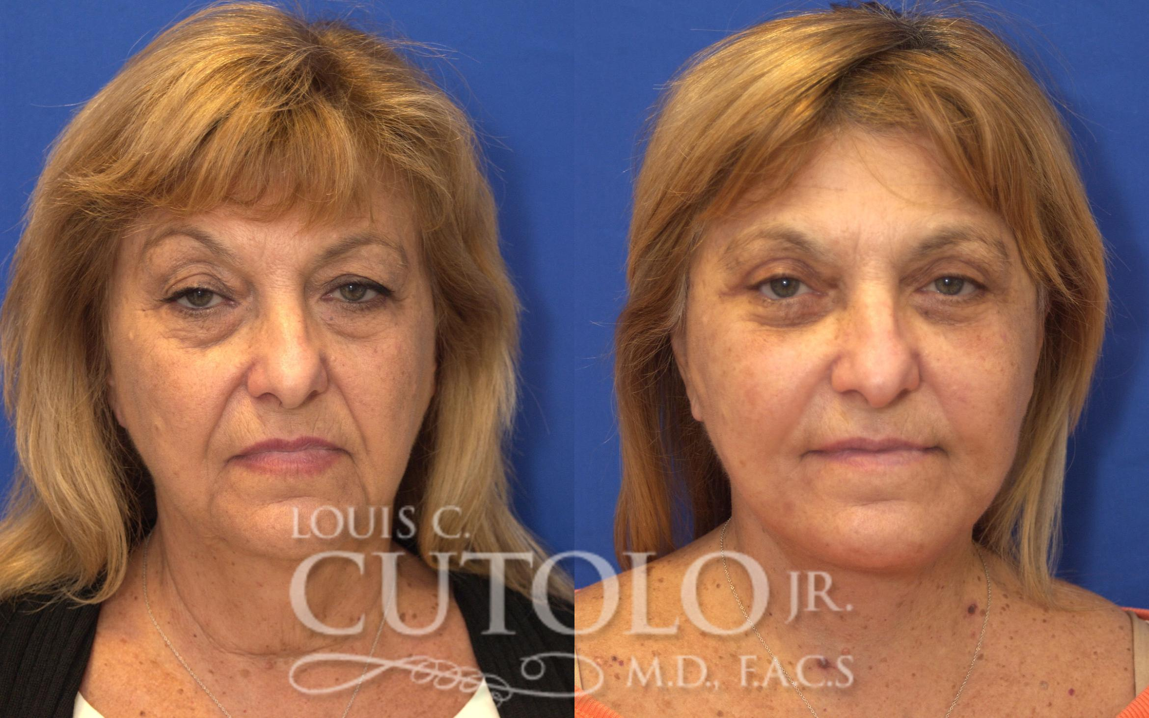 Rejuvelift™ Before & After Photo | Brooklyn, Staten Island, Queens, NY | Louis C. Cotolo, Jr., M.D., F.A.C.S.