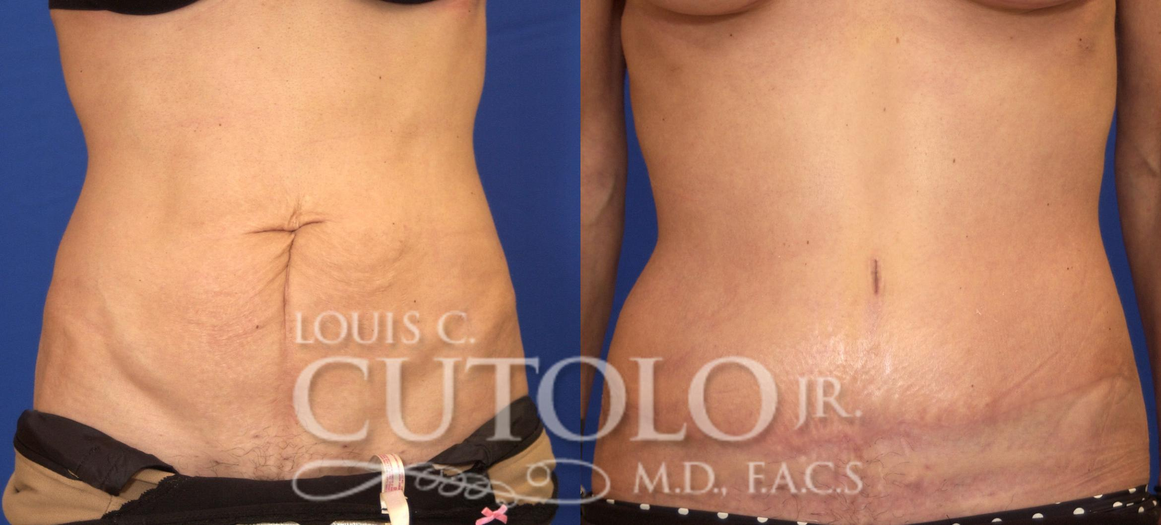Tummy Tuck Before & After Photo | Brooklyn, Staten Island, Queens, NY | Louis C. Cotolo, Jr., M.D., F.A.C.S.